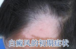 皮肤颜色开始变浅是白癜风的症状吗