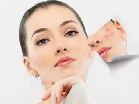 女性患有白癜风有哪些原因